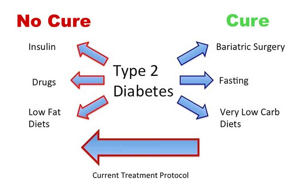 What Is Type 2 Diabetes? its Causes, Symptoms, Treatment